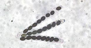 Ascus & Ascospores