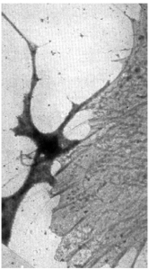 Cytoplasmic reticulum in fibroblast-like cell cultured from chick embryo tissue.